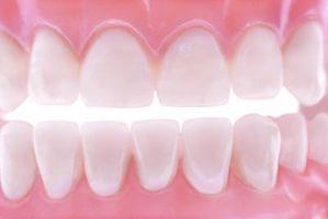 Hvordan reparere en tann med cyanoakrylatlim