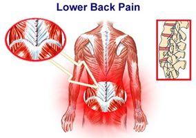 Hvordan identifisere Muscle brudd i Back