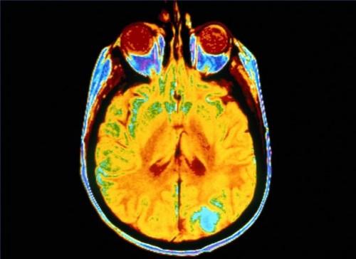 Hvordan diagnostisere svulster i hypofysen