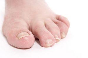 Epsom salt behandlinger for inngrodde tånegler