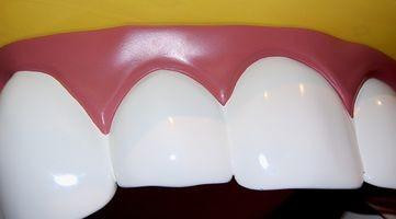 Sammenligning av Dental Labs 'finer og Crowns