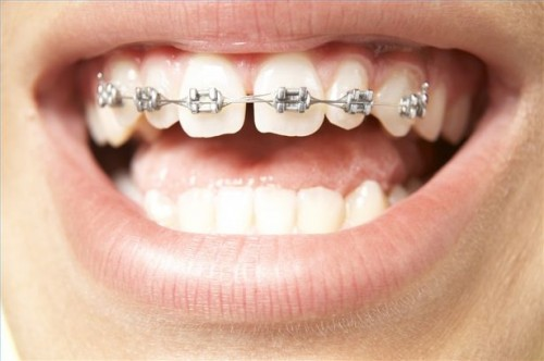 Hvordan ha tannregulering som voksen