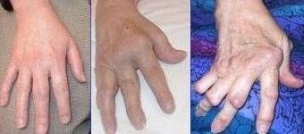 Tegn på leddgikt i hendene