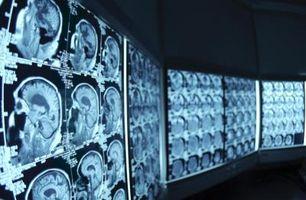 BUN & Kreatinin Testing for CT kontrast Prosedyrer