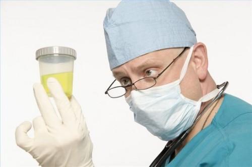 Hvordan overvåke Urin for sykdom