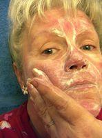 Dermarest Rosacea Avansert Rødhet Treatment