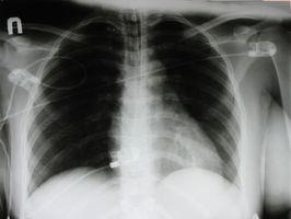 Størrelse med en defibrillator