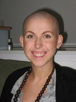 Hvorfor Chemo føre til hårtap?