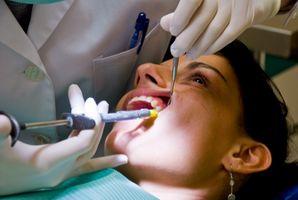 Moderat periodontal sykdom