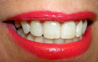 Hvordan gjør tennene hvitere i bilder