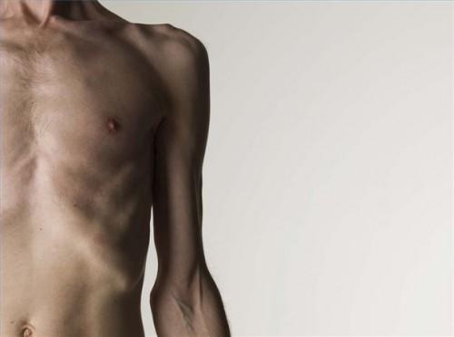 Hvordan vite Anoreksi Effects