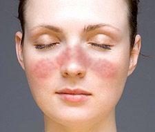 Sommerfuglutslett ved lupus