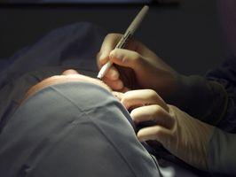 Vanlige behandlinger for vorter i ansiktet