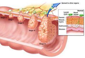 Advarsel tegn for Colon Cancer