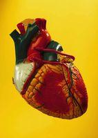 Behandlinger for en forstørret hjerte
