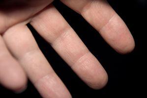 Hvordan Roter ledd på en finger for Artrose
