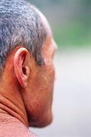 Ikke kirurgisk behandlinger for overdreven ansikts svette