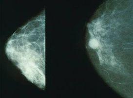 Hva er definisjonen på en cancerous klump i bryst?