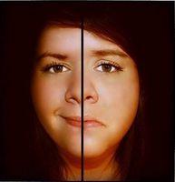 Diagnostisering av Kombinasjon Bipolar lidelse 1 & 2