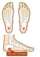 Fakta om Bone Spurs på føttene