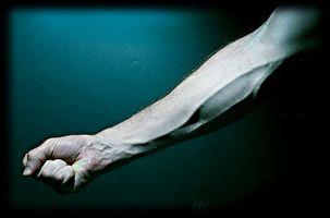 Hvorfor Veins Få sår etter å ha blod trekkes