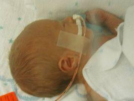 Tegn og symptomer på narkotikaavhengige babyer