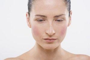 Tinea versicolor og autoimmune sykdommer