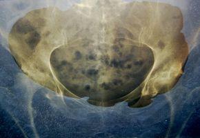 Behandling for Bone Marrow Ødem