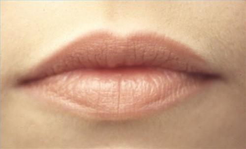 Hvordan sjekke for Mouth Cancer Symptomer
