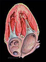 Hjertesykdom Symptomer hos menn