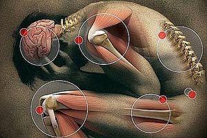 neuropatiske smerter hode