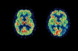Visual Variant av Alzheimers sykdom