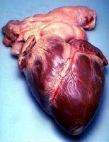 Hva er årsakene til en forstørret hjerte?