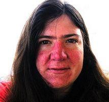 Hvordan identifisere symptomer på rosacea