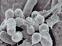 Hvordan identifisere bakteriell gastroenteritt