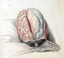 Påvirke av mangel på oksygen til hjernen