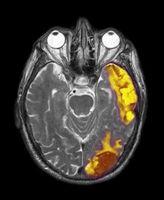 Trilateral retinoblastom Studies
