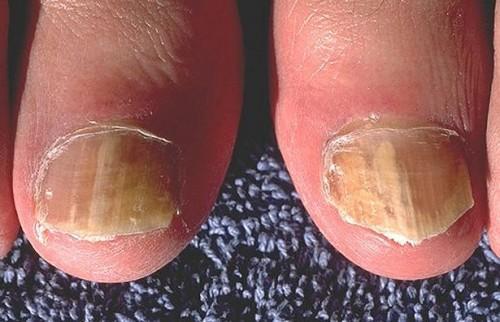 Hva er behandlingen for tånegl sopp?