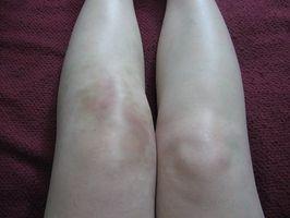 leddgikt symptomer knær