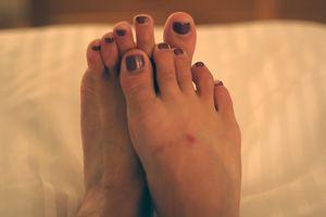 Autoimmune Skin Disease