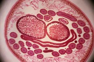 Hva er tegn på Roundworm fra avføring?