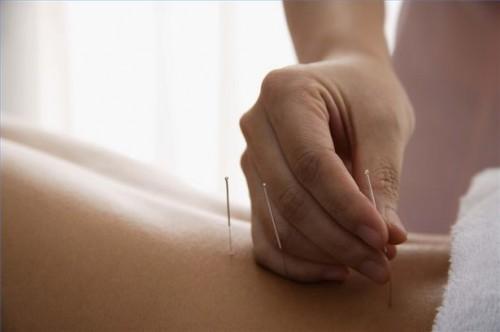 Hvordan bruke akupunktur for å hjelpe med Overspising