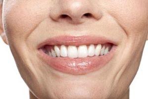 Hvordan kvalifisere for gratis tannbehandling