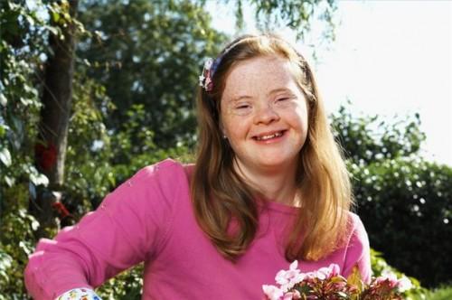 Hvordan behandle Down syndrom Med Fysioterapi