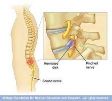 kontusjon av hofte