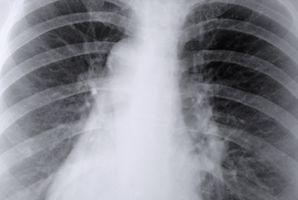 Basal Tegn på lungene