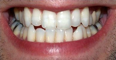 Hvordan erstatte forfalt tenner med implantater