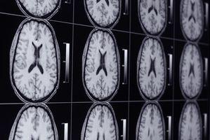 Forskjellen mellom en meningeom og en schwannom