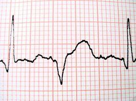 Hvordan Les EKG Spenning