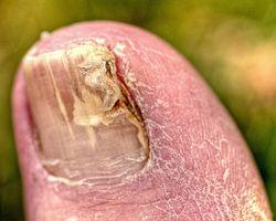 Fungal tånegl infeksjon